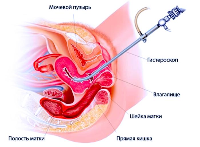 Что представляет собой процедура Гистероскопия при ЭКО