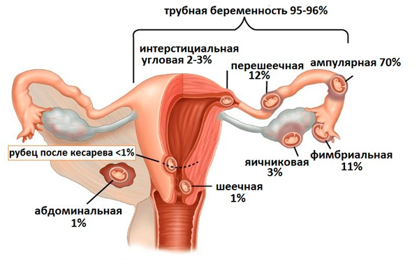 Возможная внематочная беременность при ЭКО